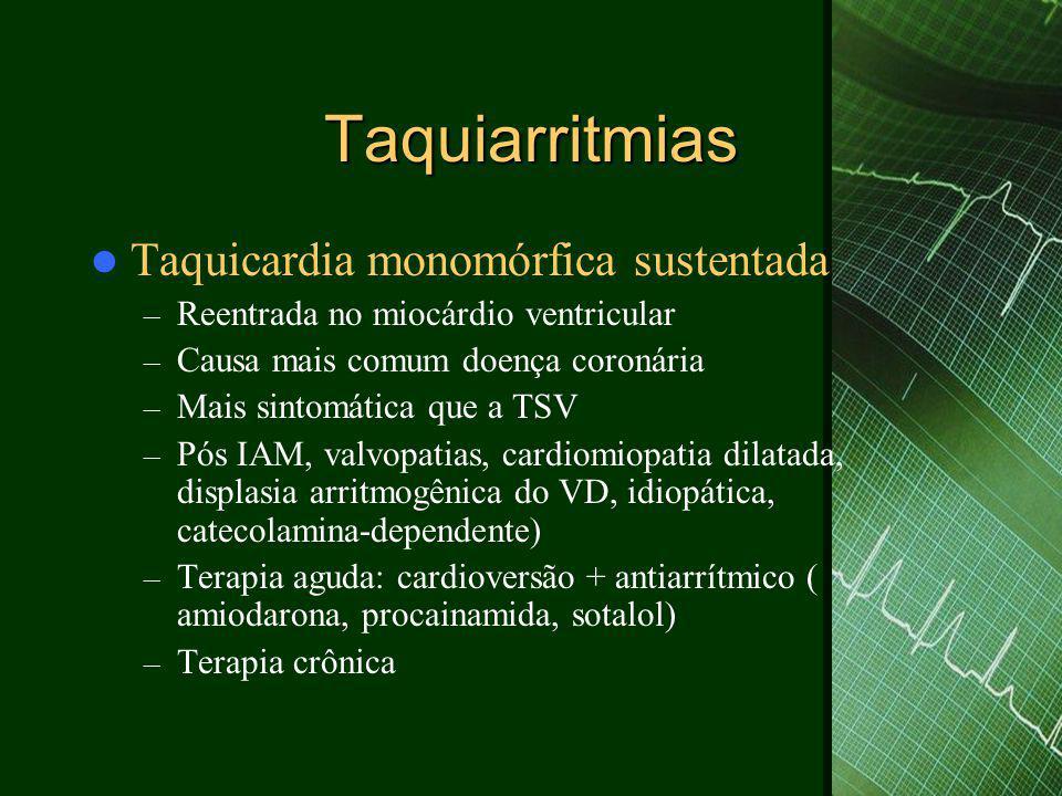 Taquiarritmias  Taquicardia monomórfica sustentada – Reentrada no miocárdio ventricular – Causa mais comum doença coronária – Mais sintomática que a
