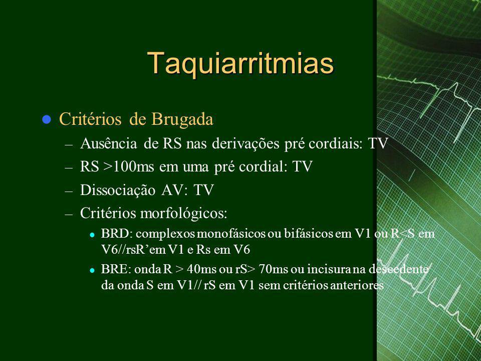 Taquiarritmias  Critérios de Brugada – Ausência de RS nas derivações pré cordiais: TV – RS >100ms em uma pré cordial: TV – Dissociação AV: TV – Critérios morfológicos:  BRD: complexos monofásicos ou bifásicos em V1 ou R<S em V6//rsR'em V1 e Rs em V6  BRE: onda R > 40ms ou rS> 70ms ou incisura na descedente da onda S em V1// rS em V1 sem critérios anteriores
