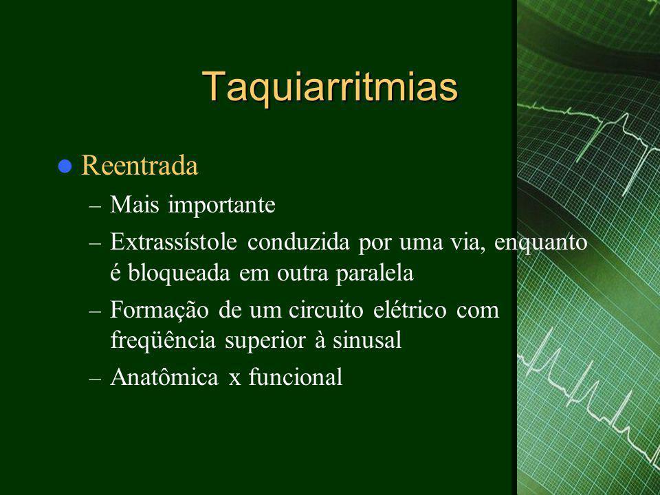 Taquiarritmias  Reentrada – Mais importante – Extrassístole conduzida por uma via, enquanto é bloqueada em outra paralela – Formação de um circuito e