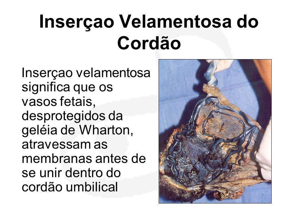 Inserçao Velamentosa do Cordão Inserçao velamentosa significa que os vasos fetais, desprotegidos da geléia de Wharton, atravessam as membranas antes d