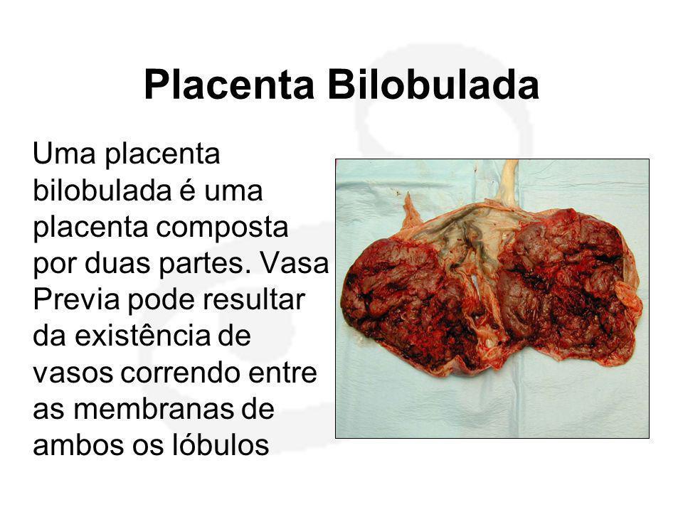 Placenta Bilobulada Uma placenta bilobulada é uma placenta composta por duas partes. Vasa Previa pode resultar da existência de vasos correndo entre a