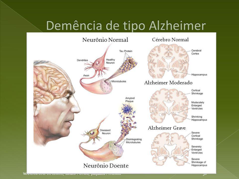 WANDER LUIZ DE LEMOS, médico / UFMG, psiquiatra / FHEMIG 56 Cérebro Normal Alzheimer Moderado Alzheimer Grave Neurônio Normal Neurônio Doente