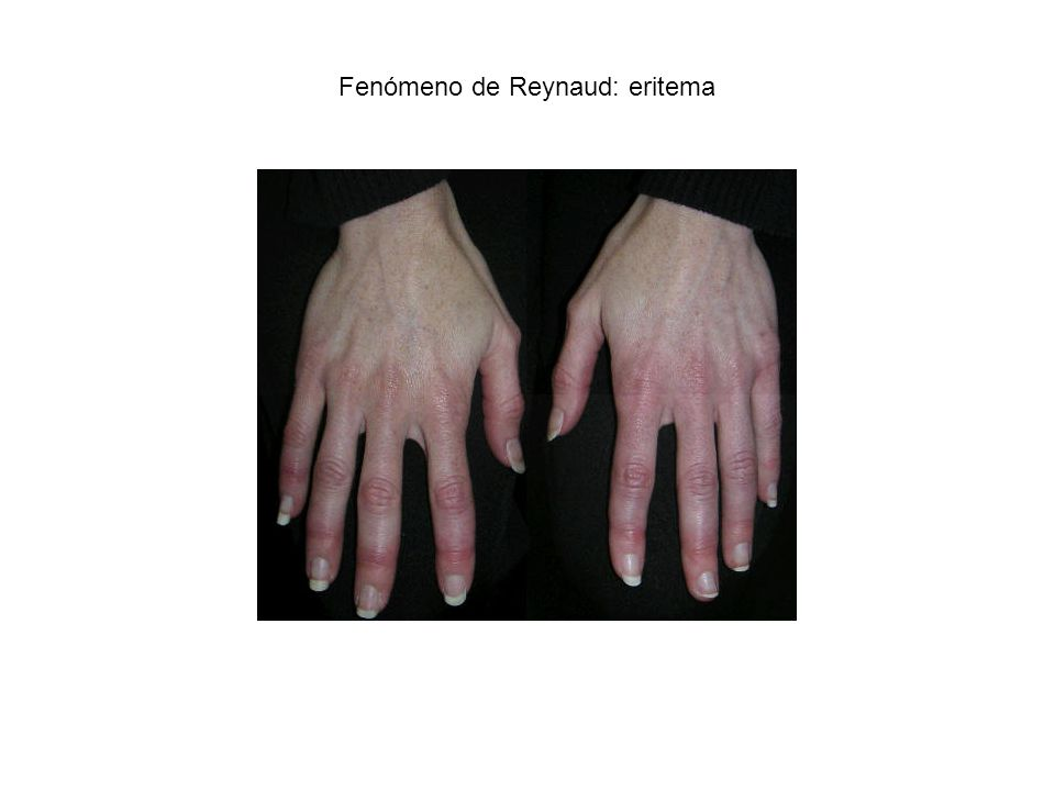 Fenómeno de Reynaud: eritema