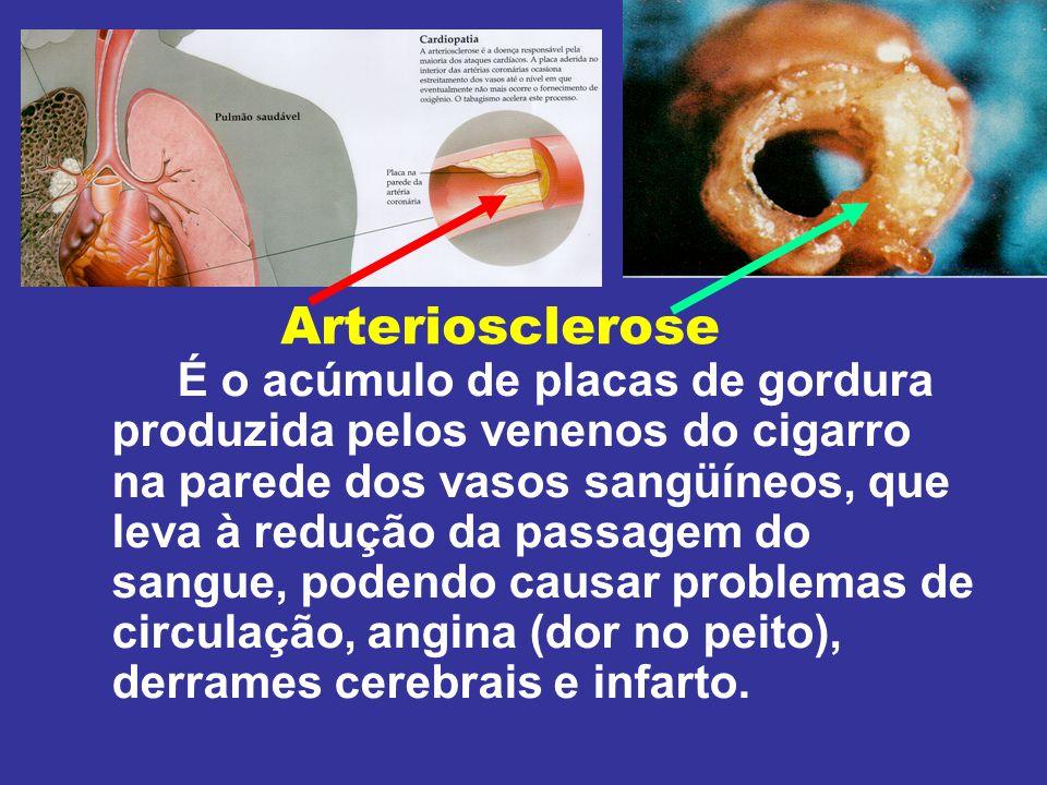 A figura superior mostra a Artéria Coronária normal As três figuras inferiores mostram o depósito de gordura nas paredes das artérias causada pelo háb