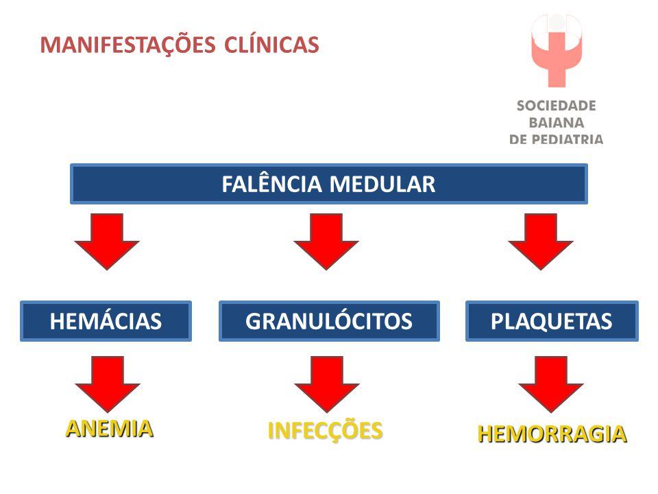 MANIFESTAÇÕES CLÍNICAS FALÊNCIA MEDULAR HEMÁCIASGRANULÓCITOSPLAQUETAS ANEMIA INFECÇÕES HEMORRAGIA