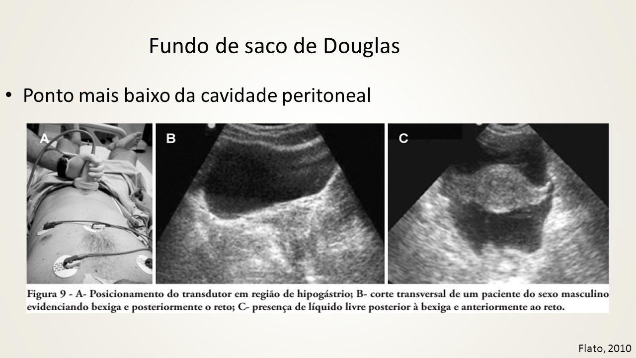 Fundo de saco de Douglas • Ponto mais baixo da cavidade peritoneal Flato, 2010