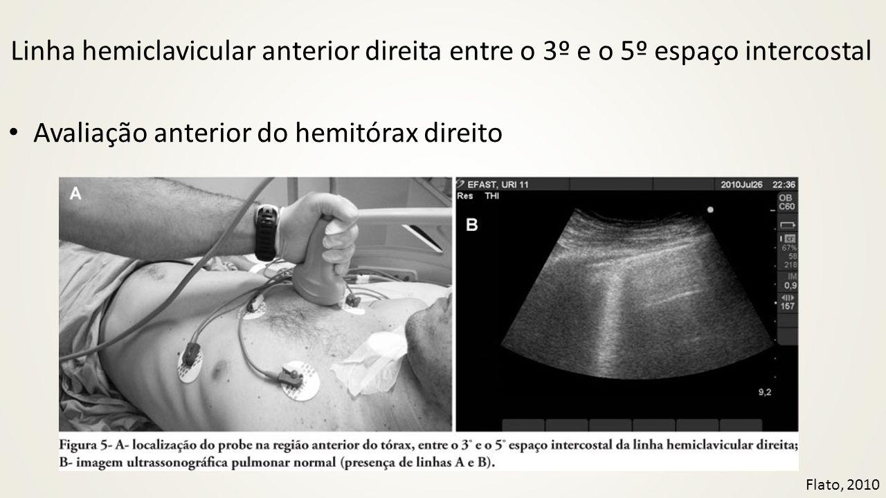 Linha hemiclavicular anterior direita entre o 3º e o 5º espaço intercostal • Avaliação anterior do hemitórax direito Flato, 2010