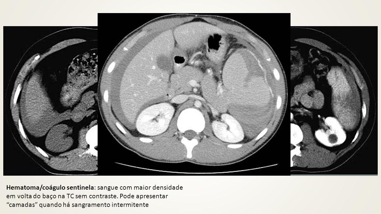 """Hematoma/coágulo sentinela: sangue com maior densidade em volta do baço na TC sem contraste. Pode apresentar """"camadas"""" quando há sangramento intermite"""
