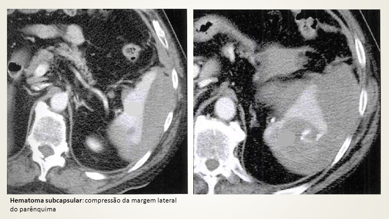Hematoma subcapsular: compressão da margem lateral do parênquima