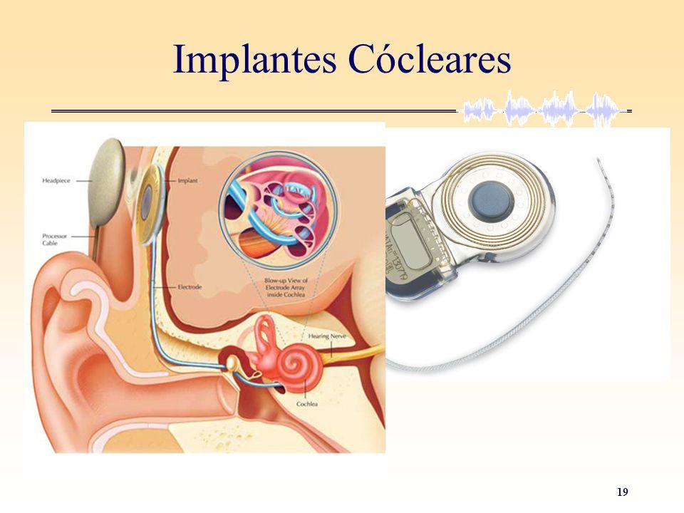 19 Implantes Cócleares