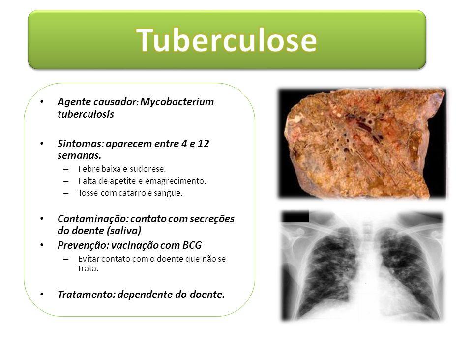 • Agente causador : Mycobacterium tuberculosis • Sintomas: aparecem entre 4 e 12 semanas. – Febre baixa e sudorese. – Falta de apetite e emagrecimento