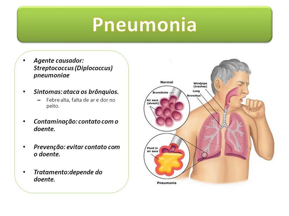 • Agente causador: Streptococcus (Diplococcus) pneumoniae • Sintomas: ataca os brônquios. – Febre alta, falta de ar e dor no peito. • Contaminação: co