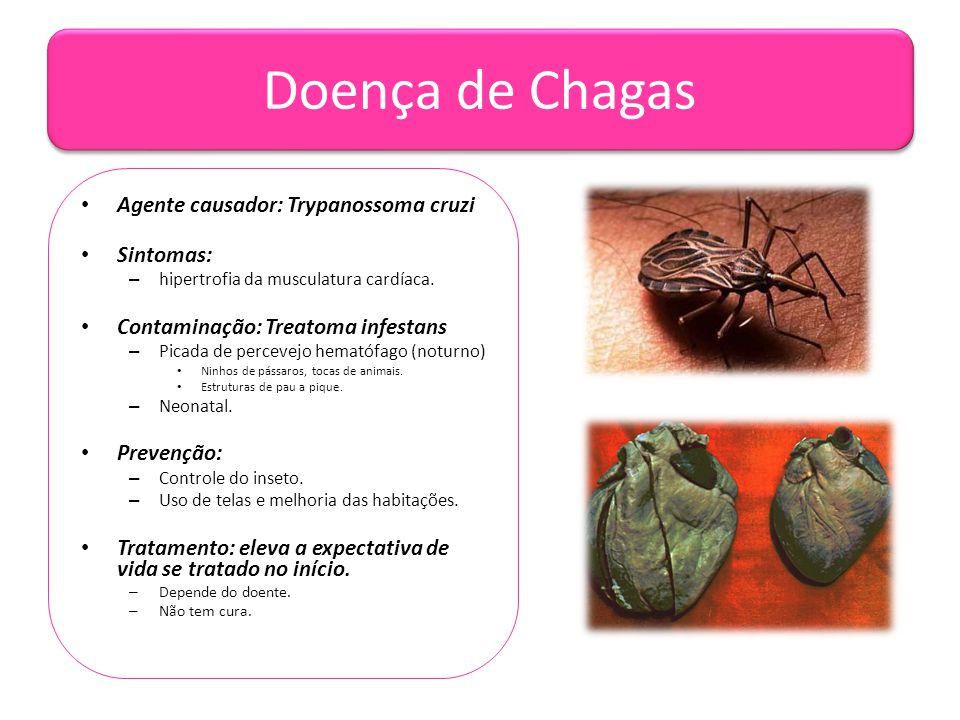 Doença de Chagas • Agente causador: Trypanossoma cruzi • Sintomas: – hipertrofia da musculatura cardíaca. • Contaminação: Treatoma infestans – Picada