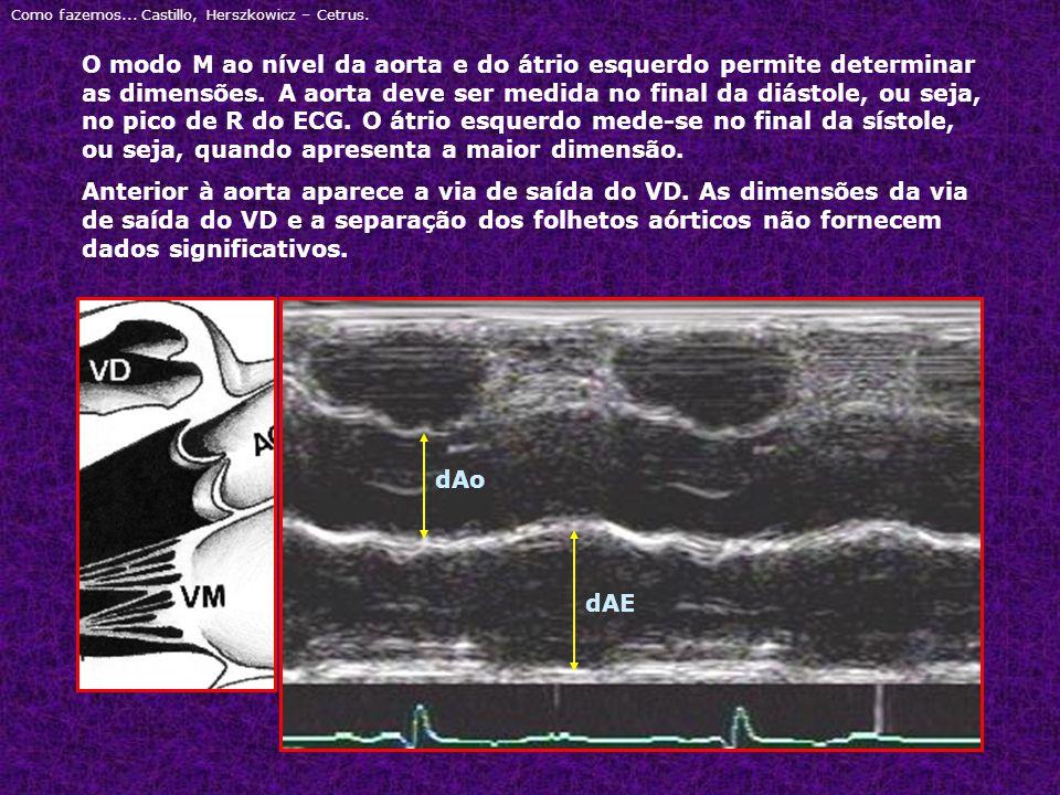 Como fazemos... Castillo, Herszkowicz – Cetrus. O modo M ao nível da aorta e do átrio esquerdo permite determinar as dimensões. A aorta deve ser medid