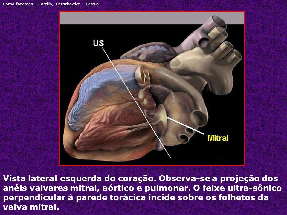Vista lateral esquerda do coração. Observa-se a projeção dos anéis valvares mitral, aórtico e pulmonar. O feixe ultra-sônico perpendicular à parede to