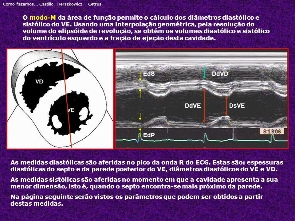 Como fazemos... Castillo, Herszkowicz – Cetrus. O modo-M da área de função permite o cálculo dos diâmetros diastólico e sistólico do VE. Usando uma in