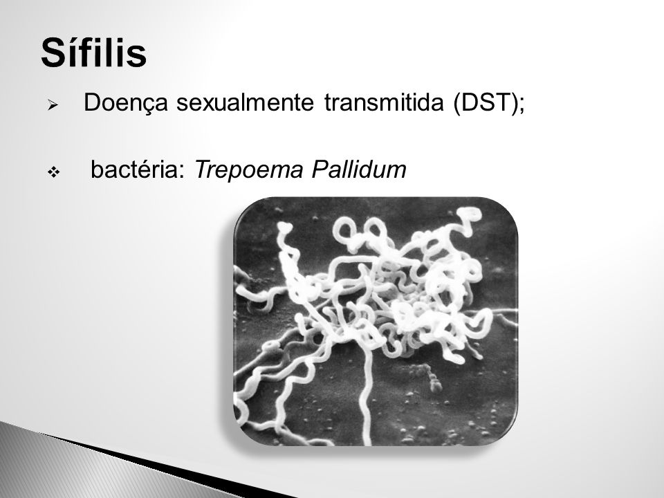  Doença sexualmente transmitida (DST);  bactéria: Trepoema Pallidum