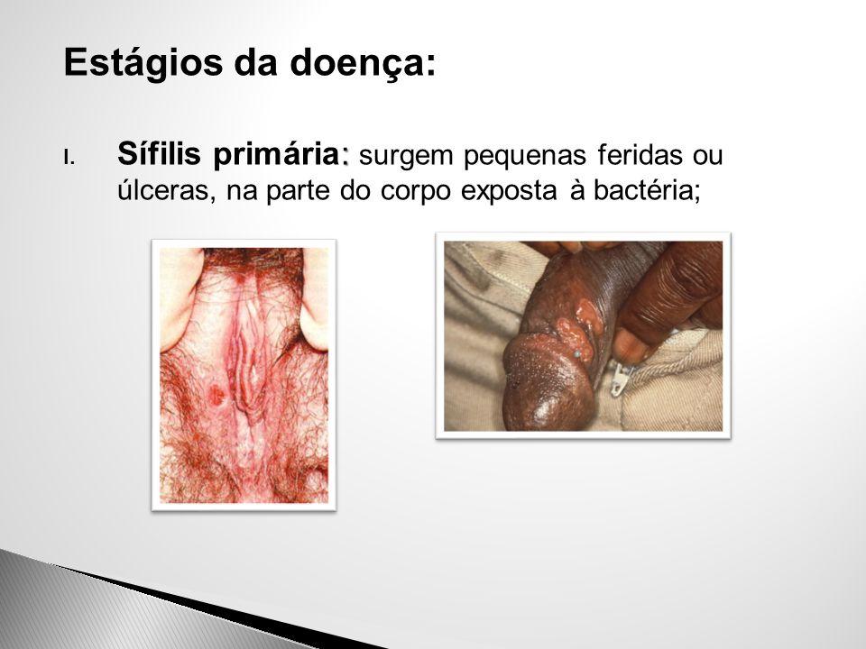 Estágios da doença: : I. Sífilis primária: surgem pequenas feridas ou úlceras, na parte do corpo exposta à bactéria;