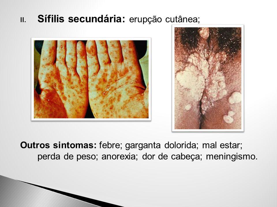 II. Sífilis secundária: erupção cutânea; Outros sintomas: febre; garganta dolorida; mal estar; perda de peso; anorexia; dor de cabeça; meningismo.