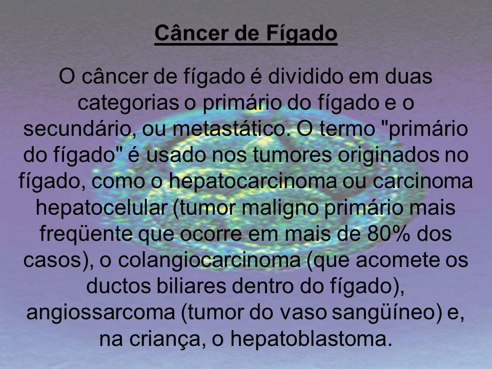 Câncer de Fígado O câncer de fígado é dividido em duas categorias o primário do fígado e o secundário, ou metastático. O termo