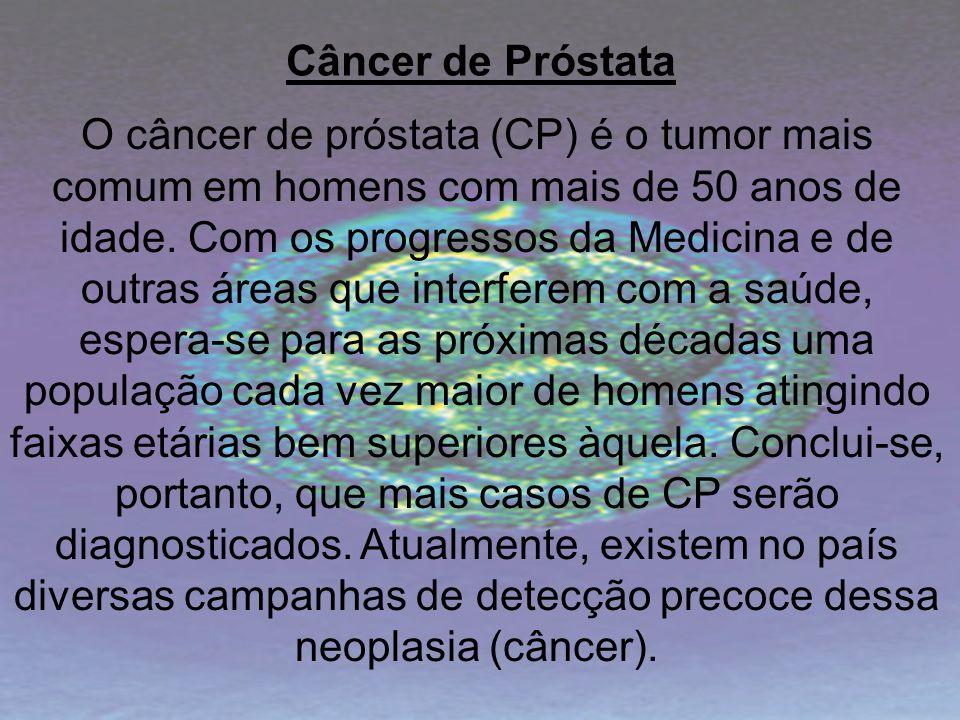 Câncer de Próstata O câncer de próstata (CP) é o tumor mais comum em homens com mais de 50 anos de idade. Com os progressos da Medicina e de outras ár