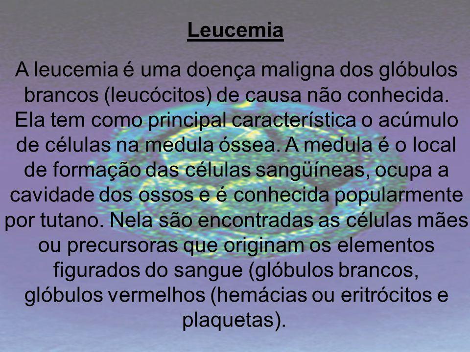 Leucemia A leucemia é uma doença maligna dos glóbulos brancos (leucócitos) de causa não conhecida. Ela tem como principal característica o acúmulo de