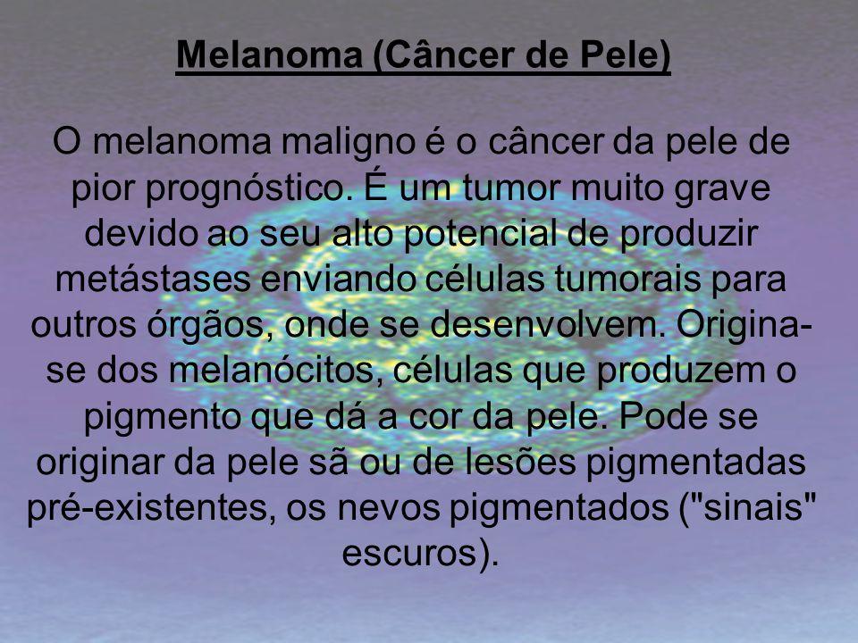 Melanoma (Câncer de Pele) O melanoma maligno é o câncer da pele de pior prognóstico. É um tumor muito grave devido ao seu alto potencial de produzir m