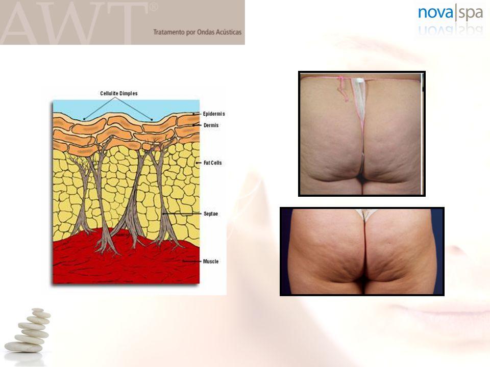 Alpha 2 : bloqueia a lipólise Beta 1-2-3 : estimula a lipólise