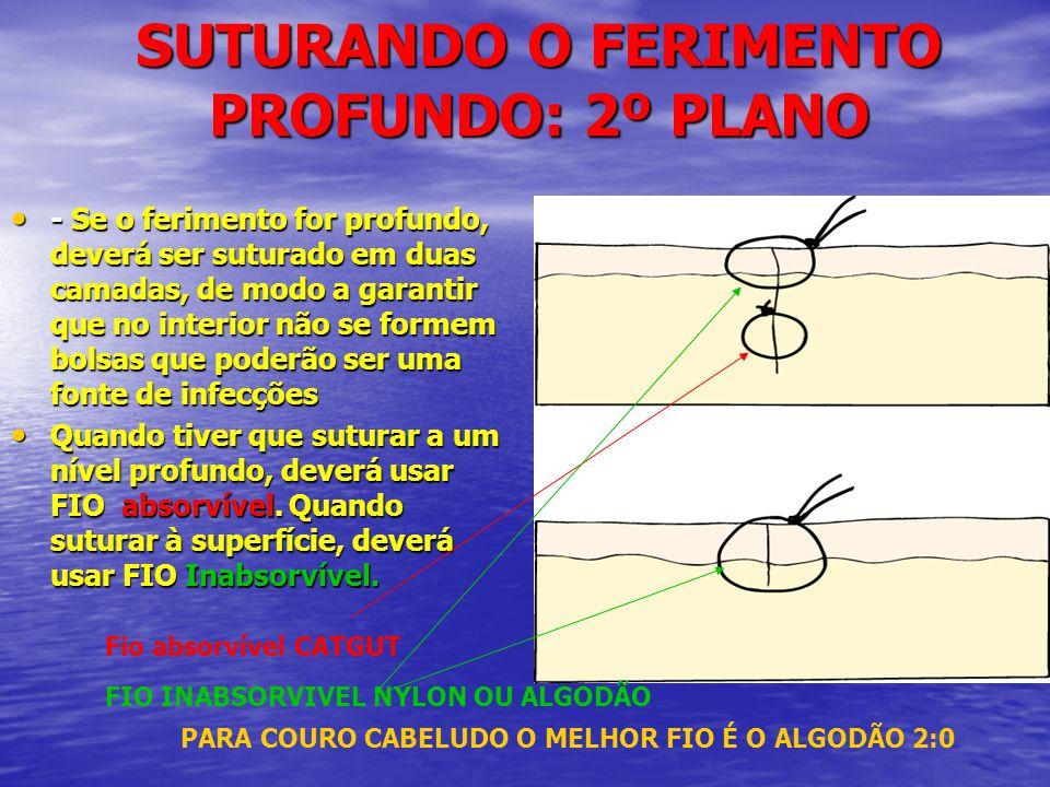 SUTURANDO O FERIMENTO PROFUNDO: 2º PLANO • - Se o ferimento for profundo, deverá ser suturado em duas camadas, de modo a garantir que no interior não