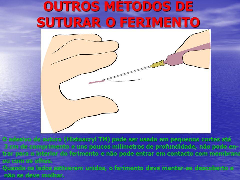 OUTROS MÉTODOS DE SUTURAR O FERIMENTO O adesivo de sutura (Histoacryl TM) pode ser usado em pequenos cortes até 3 cm de comprimento e uns poucos milímetros de profundidade, não pode en- trar para o interior do ferimento e não pode entrar em contacto com membranas ou com os olhos.