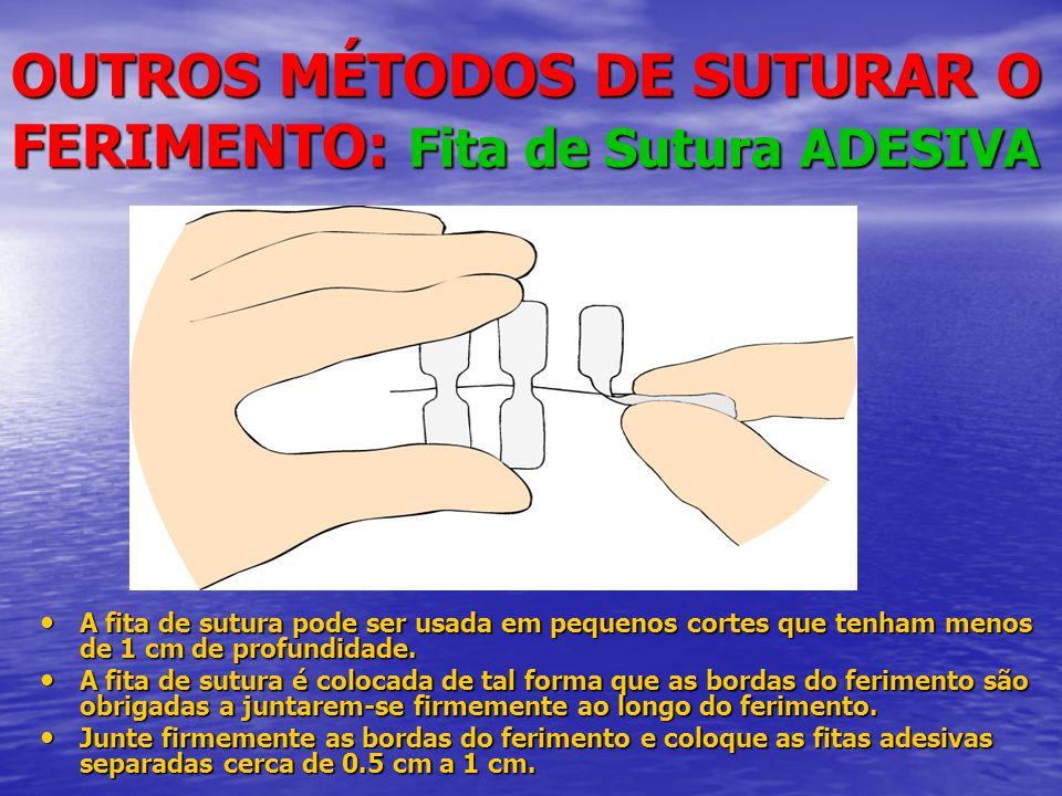OUTROS MÉTODOS DE SUTURAR O FERIMENTO: Fita de Sutura ADESIVA • A fita de sutura pode ser usada em pequenos cortes que tenham menos de 1 cm de profundidade.