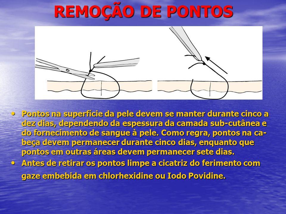 REMOÇÃO DE PONTOS • Pontos na superfície da pele devem se manter durante cinco a dez dias, dependendo da espessura da camada sub-cutânea e do fornecimento de sangue à pele.