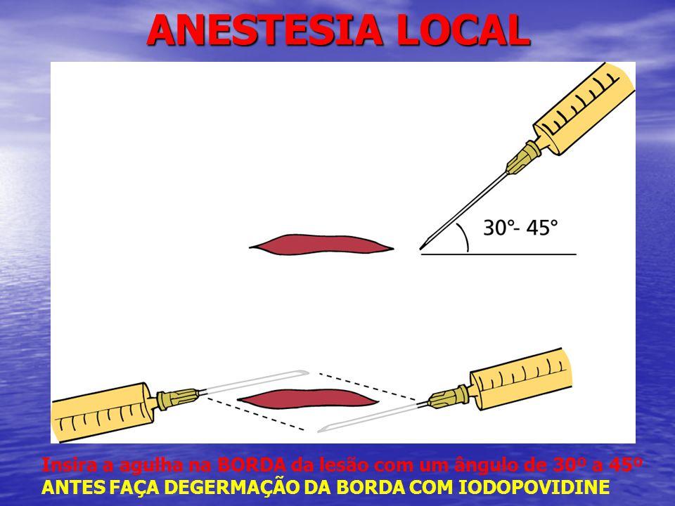 ANESTESIA LOCAL Insira a agulha na BORDA da lesão com um ângulo de 30º a 45º ANTES FAÇA DEGERMAÇÃO DA BORDA COM IODOPOVIDINE