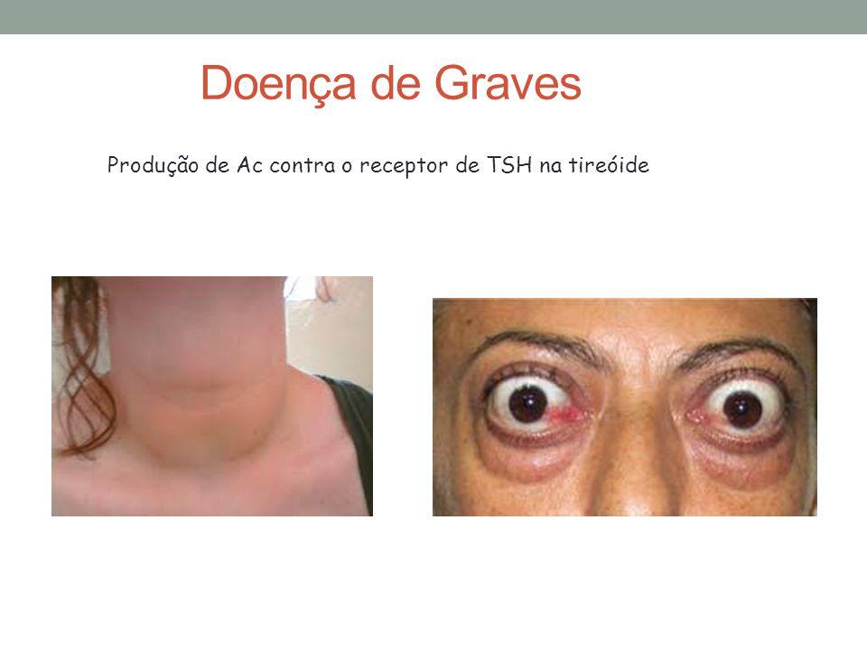 Doença de Graves Produção de Ac contra o receptor de TSH na tireóide