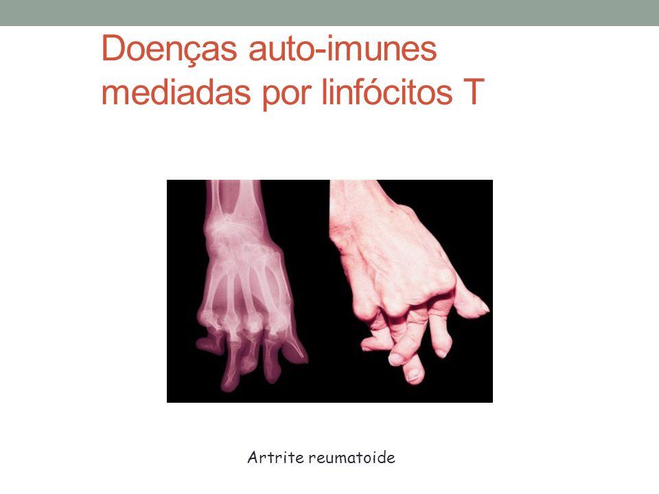 Doenças auto-imunes mediadas por linfócitos T Artrite reumatoide