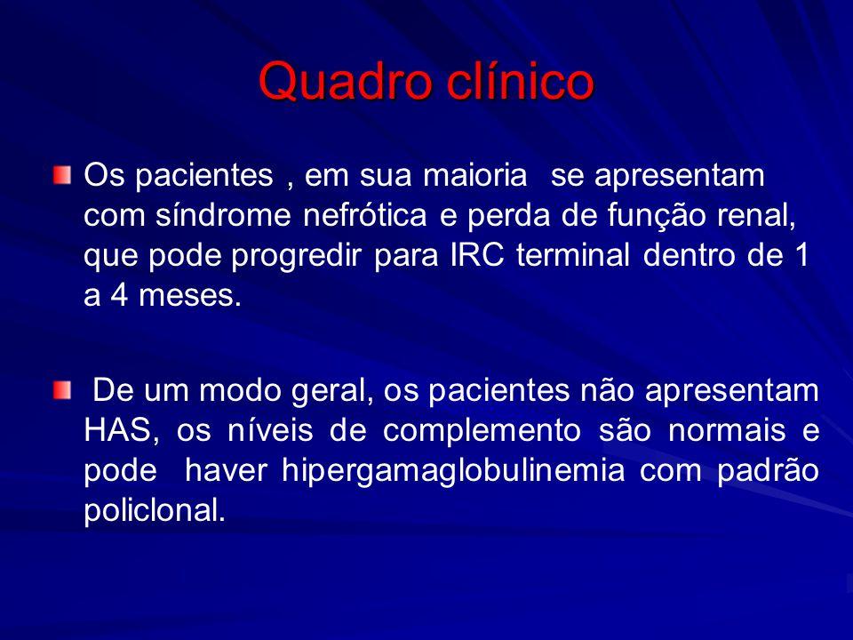 Quadro clínico Os pacientes, em sua maioria se apresentam com síndrome nefrótica e perda de função renal, que pode progredir para IRC terminal dentro