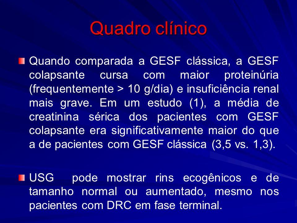 Quadro clínico Quando comparada a GESF clássica, a GESF colapsante cursa com maior proteinúria (frequentemente > 10 g/dia) e insuficiência renal mais