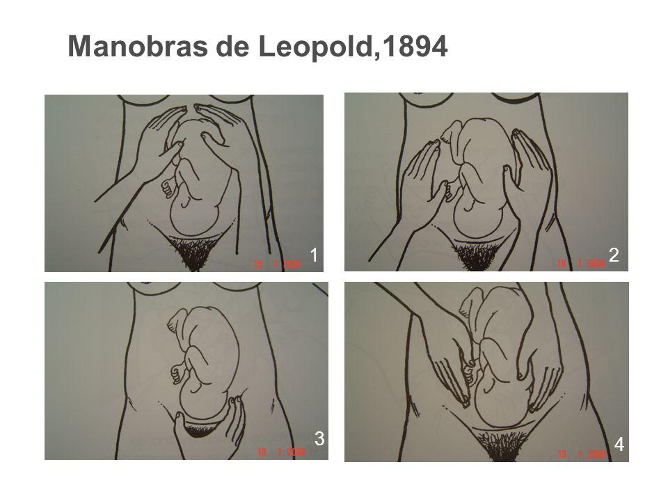 Manobras de Leopold,1894 12 3 4