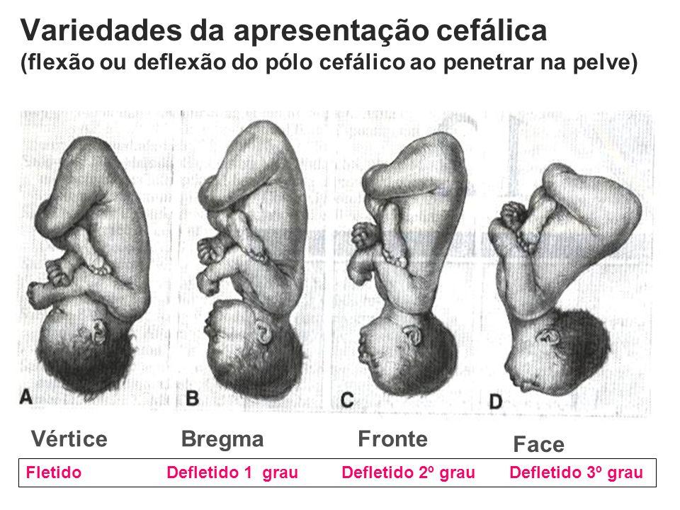 Variedades da apresentação cefálica (flexão ou deflexão do pólo cefálico ao penetrar na pelve) Vértice Face FronteBregma Fletido Defletido 1 º grau De
