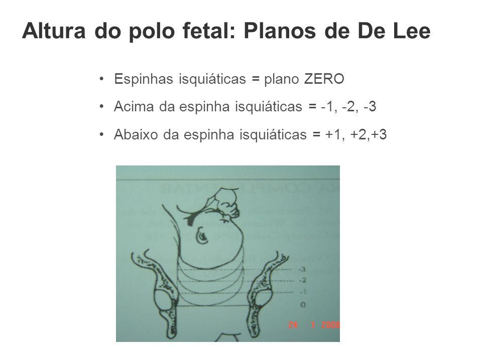 Altura do polo fetal: Planos de De Lee •Espinhas isquiáticas = plano ZERO •Acima da espinha isquiáticas = -1, -2, -3 •Abaixo da espinha isquiáticas =