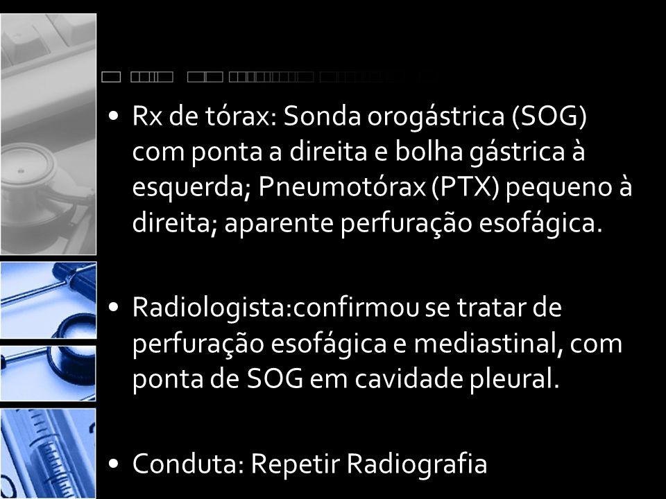 •Rx de tórax: Sonda orogástrica (SOG) com ponta a direita e bolha gástrica à esquerda; Pneumotórax (PTX) pequeno à direita; aparente perfuração esofágica.