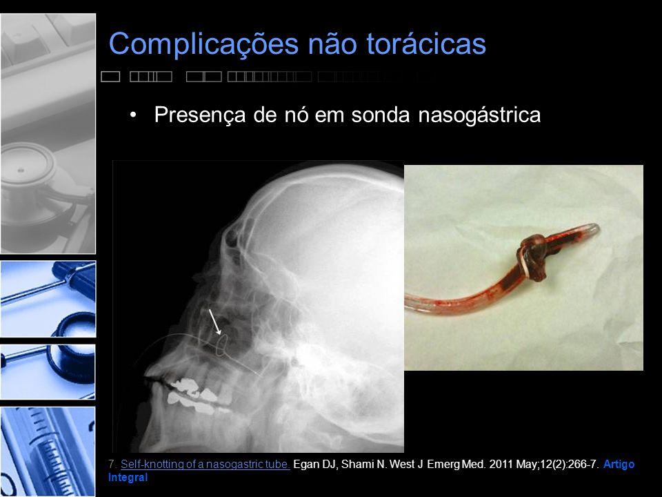 Complicações não torácicas •Presença de nó em sonda nasogástrica 7.