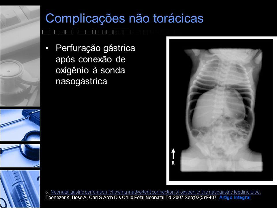 Complicações não torácicas •Perfuração gástrica após conexão de oxigênio à sonda nasogástrica 8.
