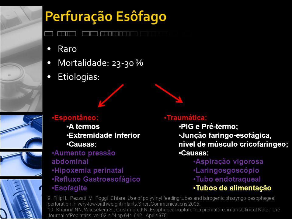 •Raro •Mortalidade: 23-30 % •Etiologias: •Espontâneo: •A termos •Extremidade Inferior •Causas: •Aumento pressão abdominal •Hipoxemia perinatal •Refluxo Gastroesofágico •Esofagite •Traumática: •PIG e Pré-termo; •Junção faringo-esofágica, nível de músculo cricofaríngeo; •Causas: •Aspiração vigorosa •Laringosgoscópio •Tubo endotraqueal •Tubos de alimentação 9.