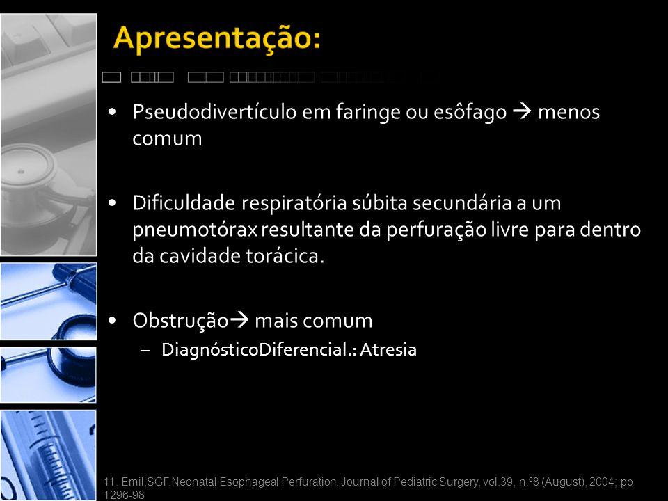 •Pseudodivertículo em faringe ou esôfago  menos comum •Dificuldade respiratória súbita secundária a um pneumotórax resultante da perfuração livre para dentro da cavidade torácica.