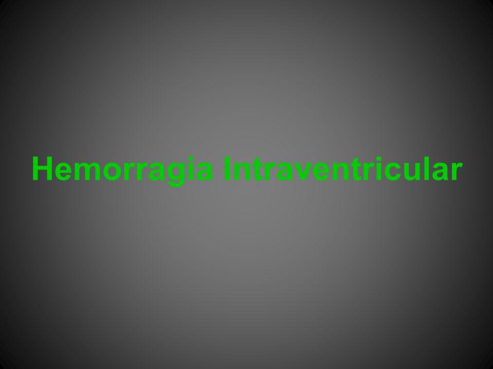 Hemorragia Intraventricular