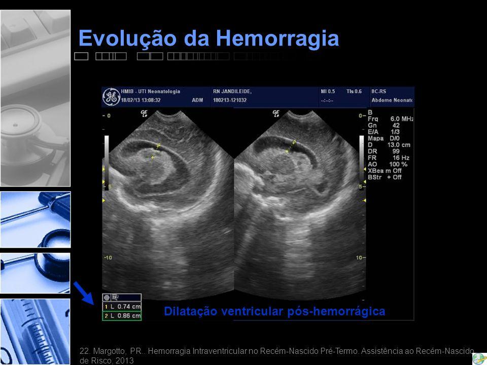 Evolução da Hemorragia Dilatação ventricular pós-hemorrágica 22.