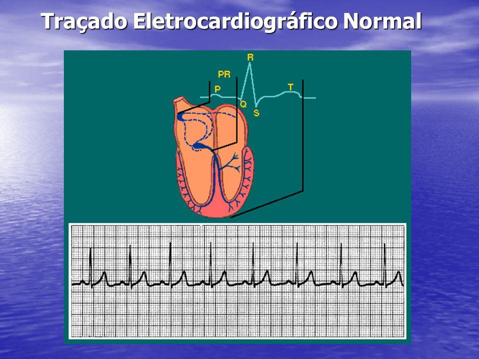 Traçado Eletrocardiográfico Normal
