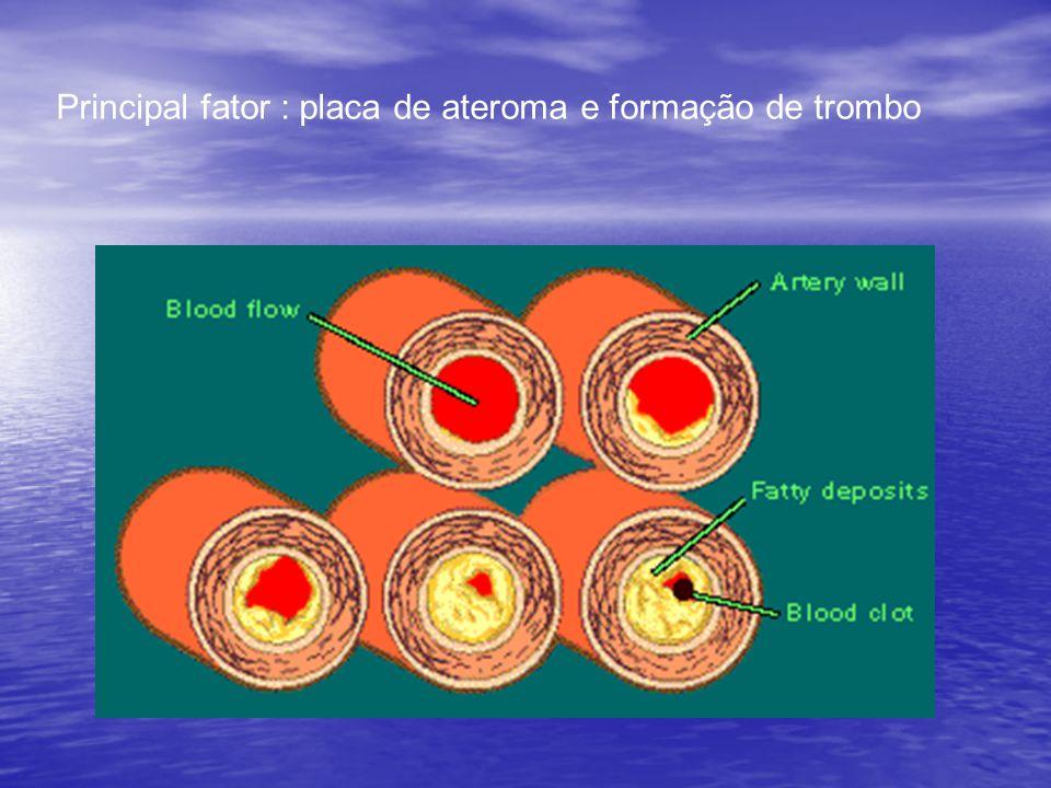 Principal fator : placa de ateroma e formação de trombo