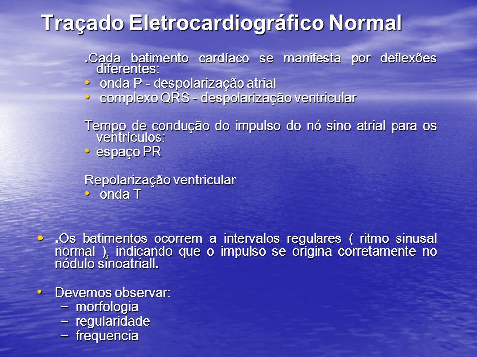 Traçado Eletrocardiográfico Normal. Cada batimento cardíaco se manifesta por deflexões diferentes: • onda P - despolarização atrial • complexo QRS - d